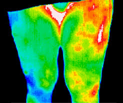 thermography iowa mend