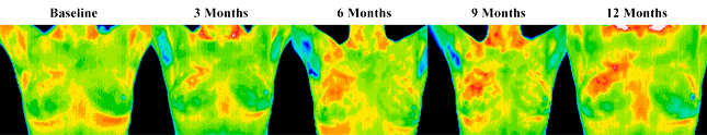 des moines, Iowa thermography